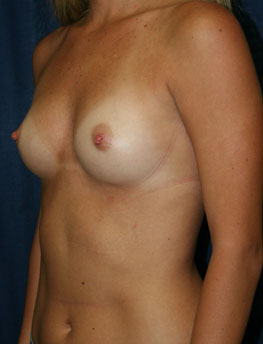 Breast patient 9