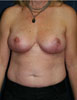 Breast reduction patient 2