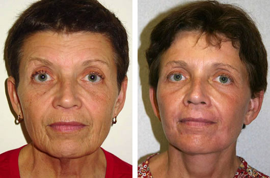 Facelift - Neck Lift Patient