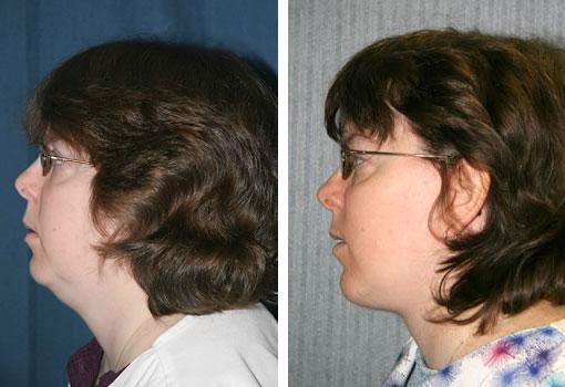 Facelift - Neck Lift Patient