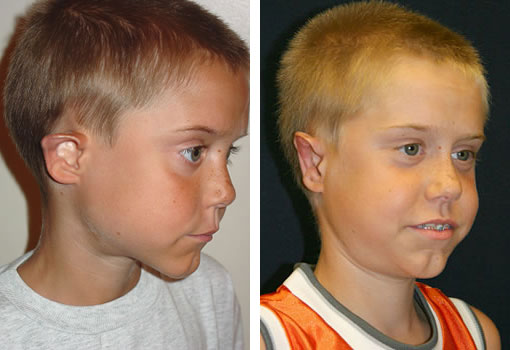 Otoplasty - Ear Surgery Patient